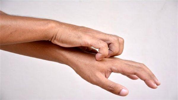 خارش پوست، جدیدترین نشانه ابتلا به ویروس کرونا